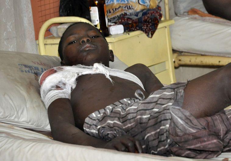 ילד ניגרי שנפצע בהתקפה על מסגד שביצע ארגון הבוקו חראם