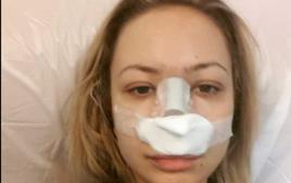 אלה איבנדר לאחר ניתוח האף