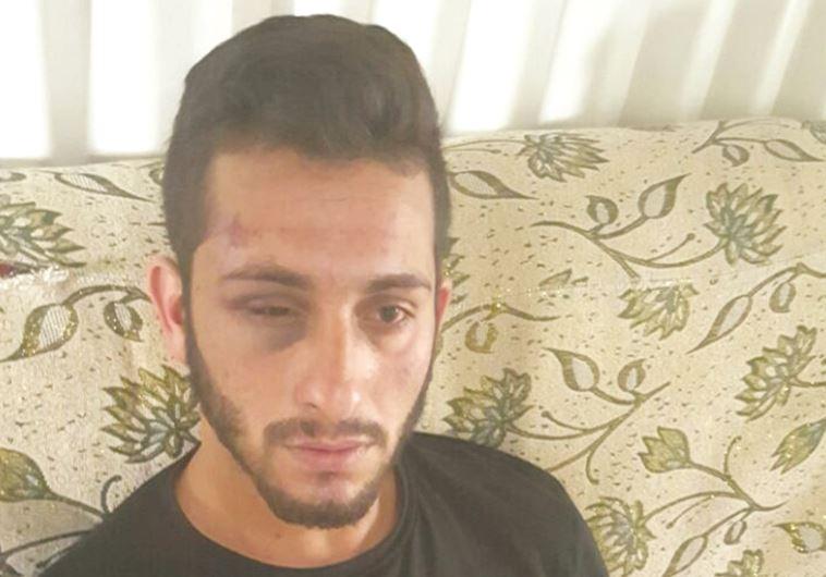 מייסם אבו-אלקיעאן  לאחר שהוכה