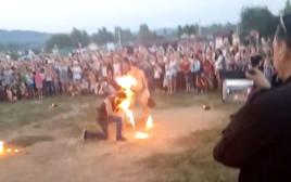 אופס. בולע אש הצית את פניו בטעות במהלך מופע